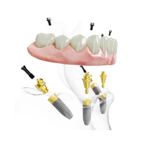 All-on-4 implantáció