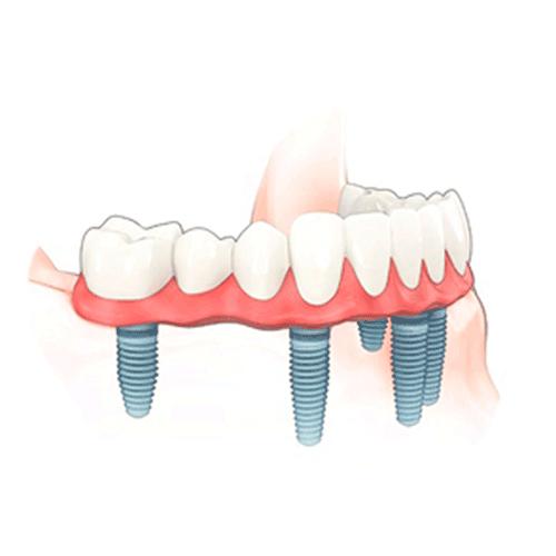 All-on-6 implantáció