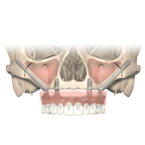 Zygoma implantáció